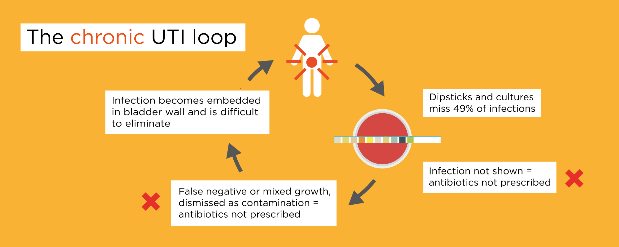 Diagram of chronic UTI loop. Infection missed by tests, antibiotics not prescribed, infection becomes embedded