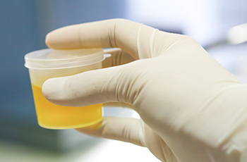 MSU urine tests miss 30 per cent of infections