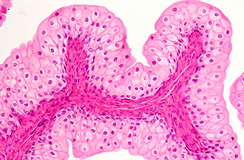 Bladder wall or urothelium